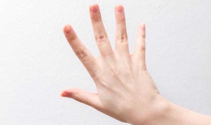 女性に多い手指のトラブル プラスコラム  +Wellness プラス ...